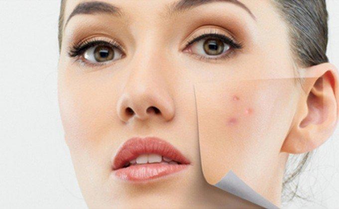 Cum sa ingrijesti o piele sensibila